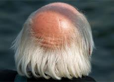 Haare auf dem kopf durchschnitt